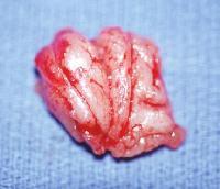Удаленная миндалина