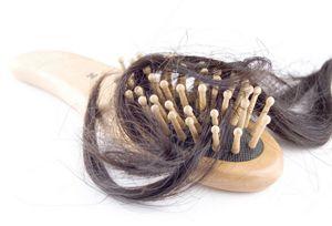 Выпадения волос