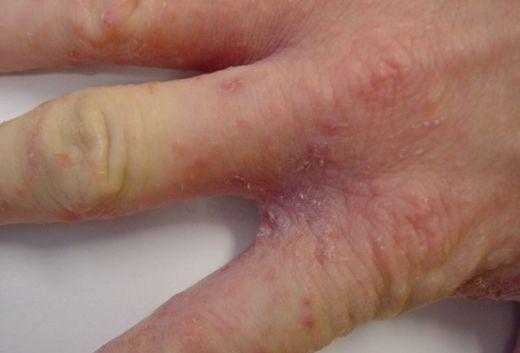 аллергия на лице чем мазать чтоб