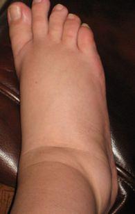мазь отеки ног